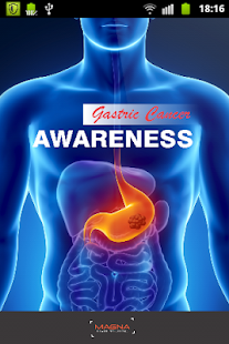Gastric Cancer - screenshot