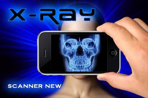 X-ray視頻