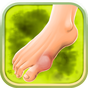 Gout Symptoms + Treatment