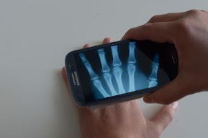 Screenshot of Xray Prank