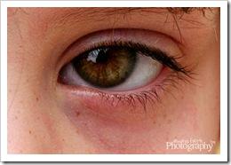 24 - Eye