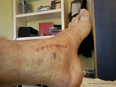 Operatia la piciorul stang