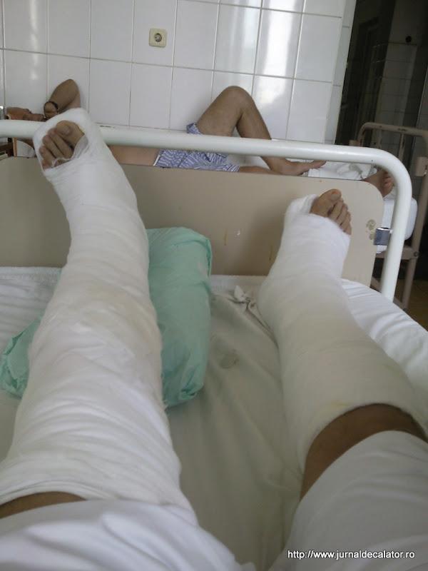 Picioare rupte