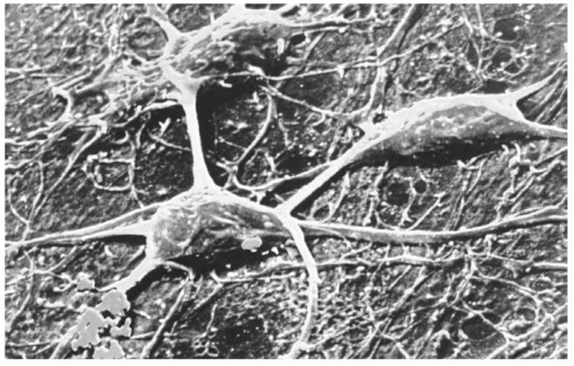 Chemoreception is the means by which an organism receives signals regarding chemical changes in its environment, translating them into processes within the body and brain. nerve cells, such as the ones shown here, make up a network of primary receptors that receive and interpret stimuli and transmit messages based on these sensory data to the brain.