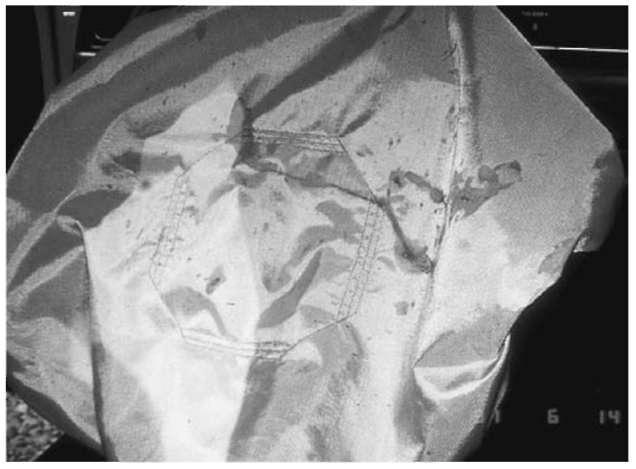 Close examination of an air bag may reveal a multitude of transferred evidence. This evidence will include: hair, blood, epithelial tissue and facial makeup.