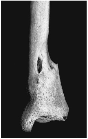 Healed fracture of tibia (Pretoria skeletal collection).