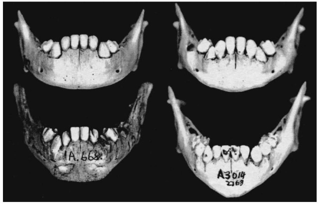 Sex differences in the immature mandible. Female morphology (above) has a rounded corpus shape with a gradual transition from the lateral body to the symphysis. Males (below) show a steep abrupt transition with an angular corpus (not dental arcade) shape