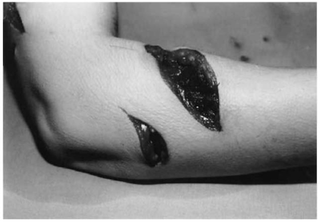 Defense injuries on the forearm of a victim who was killed by stab wounds to the chest and cut-throat wounds.