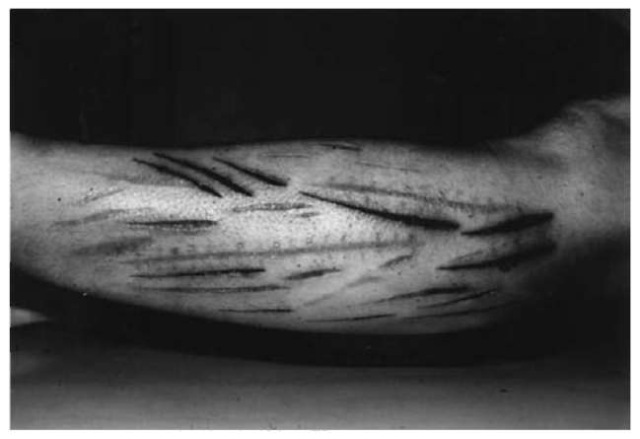 Left forearm of a 21-year-old depressive patient with a schizoid personality disorder and multiple=