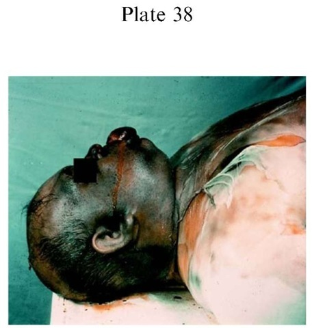 Plate 38 PATHOLOGY/Postmortem Changes Putrefaction: death in a centrally heated flat 4 days previously.