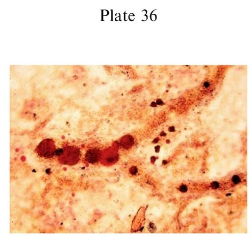 Plate 36 PATHOLOGY/Histopathology Pulmonary fat embolism following multiple=