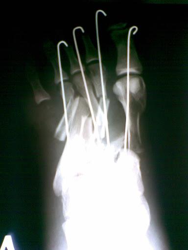 Рука и спицы