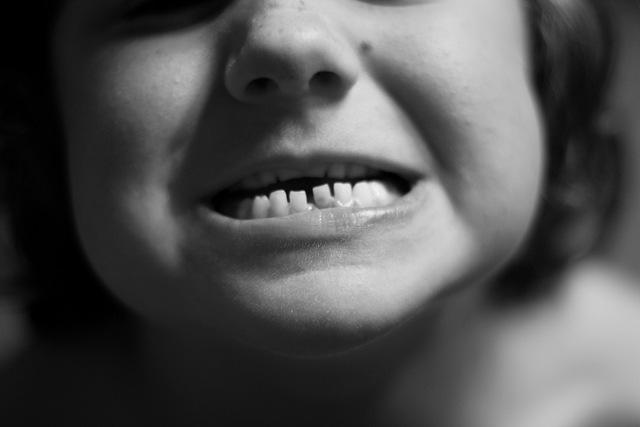 [tooth5[6].jpg]