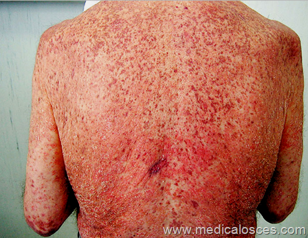This Patient Was Found To Have New Onset Hyperglycemia  What Is The