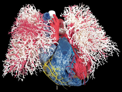 image shows the heart and blood vessels of the lungs