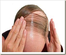 tratamiento natural caida del cabello