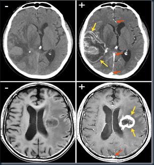 CT dan MRI kontras