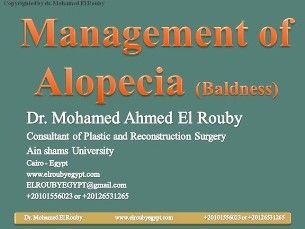 alopecia and hair transplantation