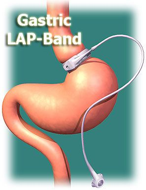 gastric lap band