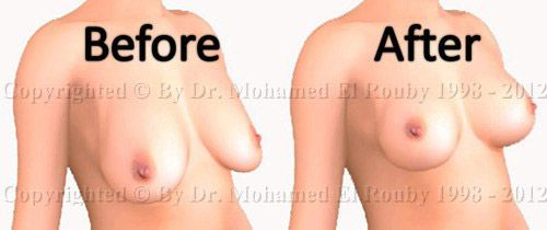before and after breast lifting