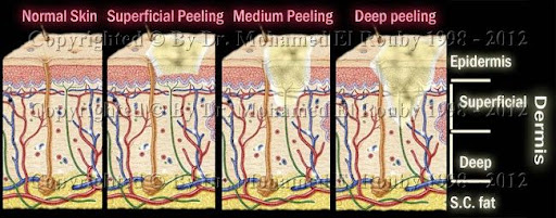 types of chemical peeling