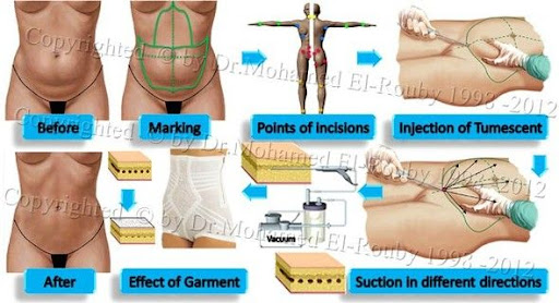 steps of liposuction