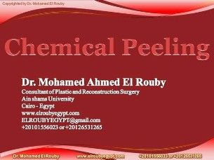 chemical peeling presntation