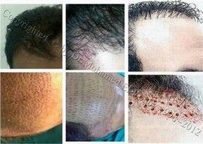 best hair transplantation