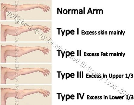 types of reduntant arms