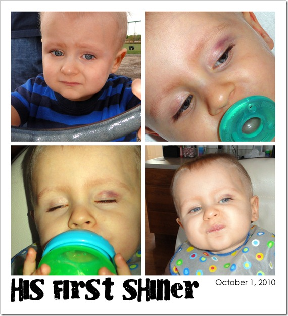His First Shiner - October 1, 2010