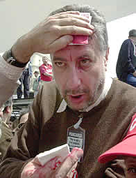 Fidalgo con una hermosa brecha el primero de mayo de 2003