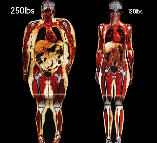 Body Scans of two Women: 250lb vs 120lb [Pic]