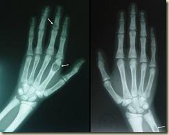 hyperparathyroidism-718x567