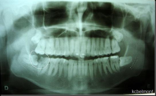 Fratura por exodontia do 3 molar inferior inpactado 8