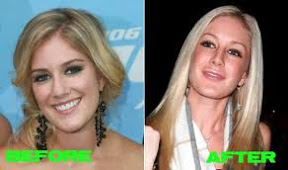 heidi-montag-before-and-after-plastic-surgery-photos-pictures-gallery
