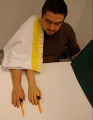 brazo-protesis