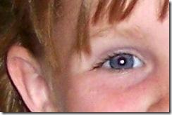 jessie eye 2