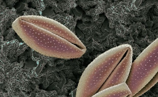 amazing_pollen_grains_under_microscope_12