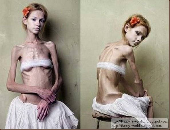 skinny-anorexic-models (1)