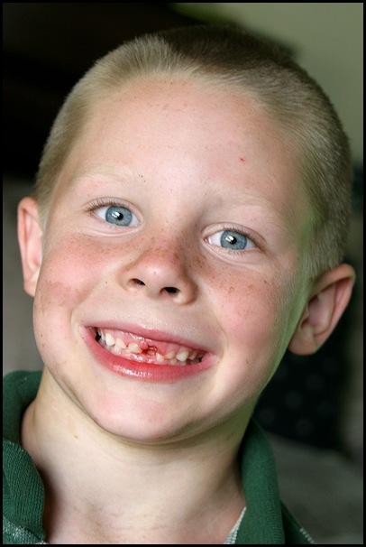 Nathan no tooth