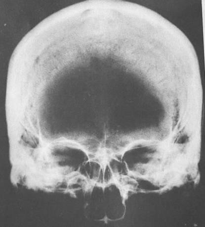 radyografi.jpg