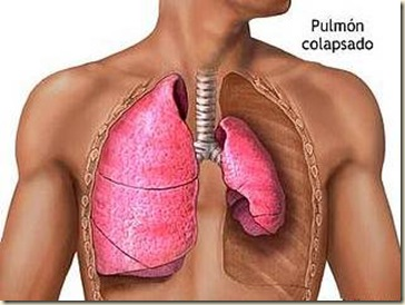 Cancer Pulmonar II