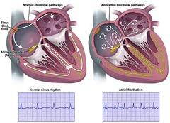 atrial-fibrillation-lg-enlg