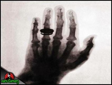 x-ray pertama