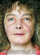 Isabelle Dinoire, despues de la operacion