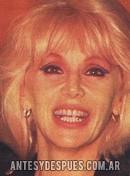 Susana Gimenez, 1987