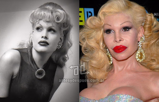 amanda lepore antes y despues de la cirugia plastica
