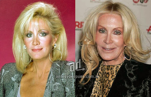 joan van ark antes y despues de la cirugia plastica