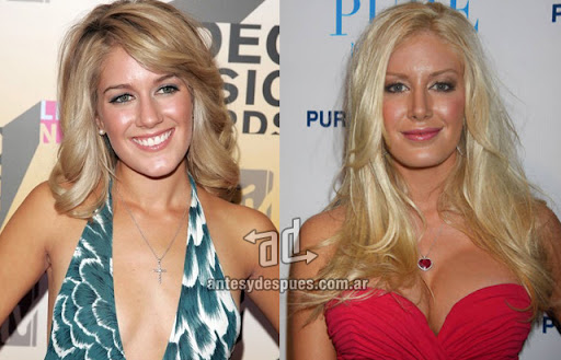 heidi montag antes y despues de la cirugia plastica