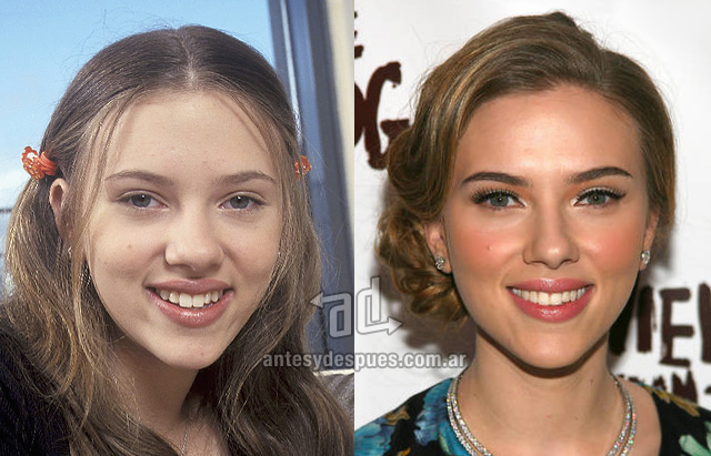 scarlett johansson before surgery